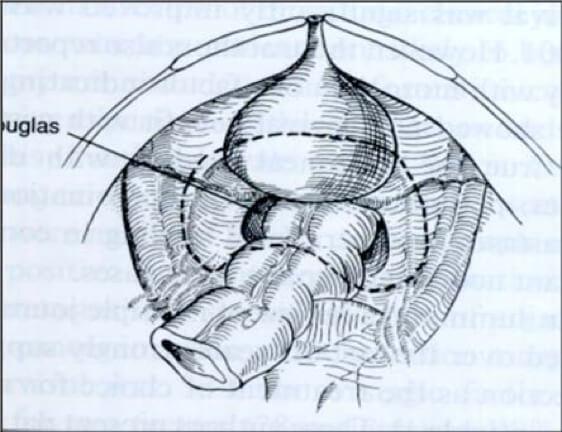 cytoreductive surgery - pelvic peritonectomy