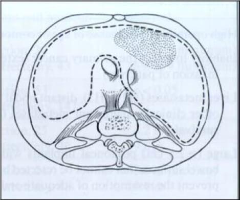 cytoreductive surgery - subdiaphragmatic peritonectomy